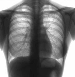 В озерской больнице медсестра заразилась туберкулезом от пациента
